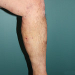 Varicose Veins After Treatment