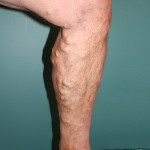 Varicose Veins Before Treatment